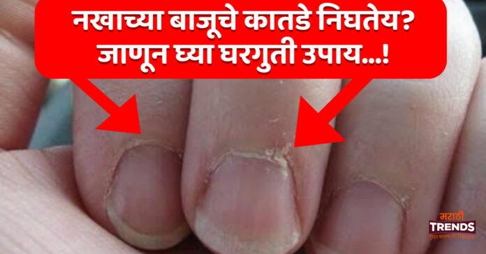 nail-skin-peeling-nakh-skin-twacha-nighane-marathi